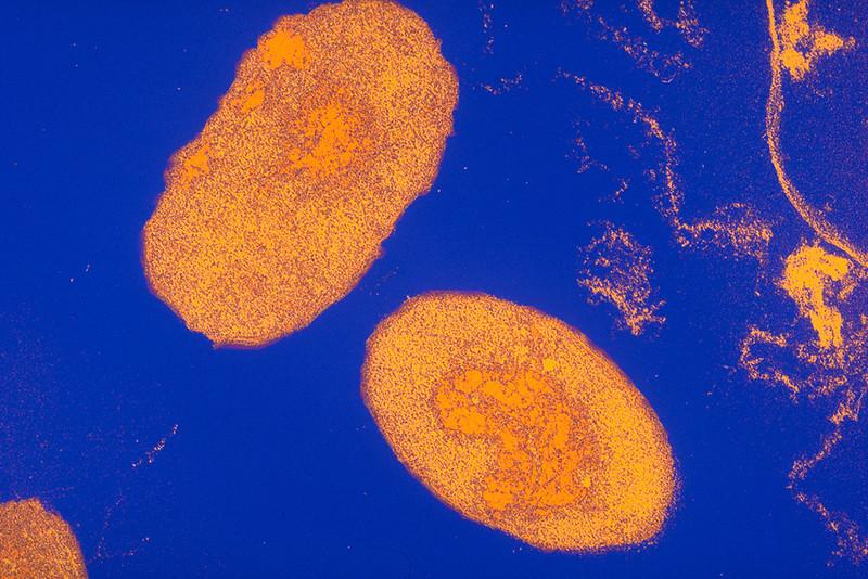 Pertussis bacteria