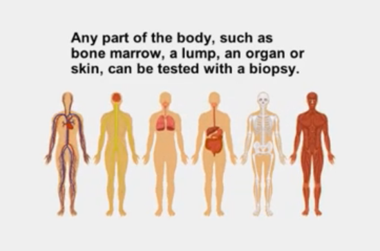 Body parts for biopsy