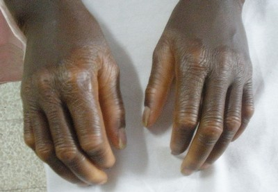 palmoplantar dermatitis on hands