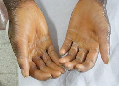 palmoplantar dermatitis palms