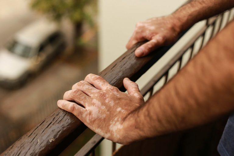 arms and hands with dark skin with vitiligo leaning on railing