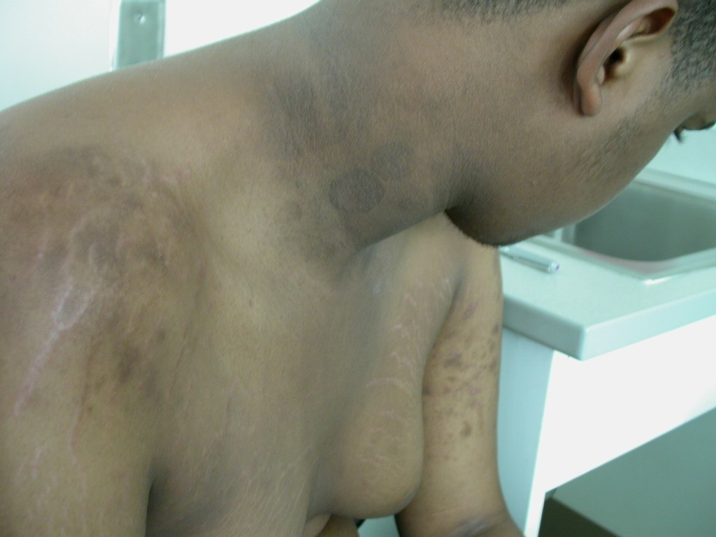 acanthosis fungal infection