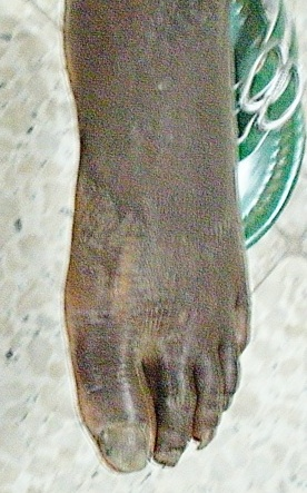 palmoplantar dermatitis foot