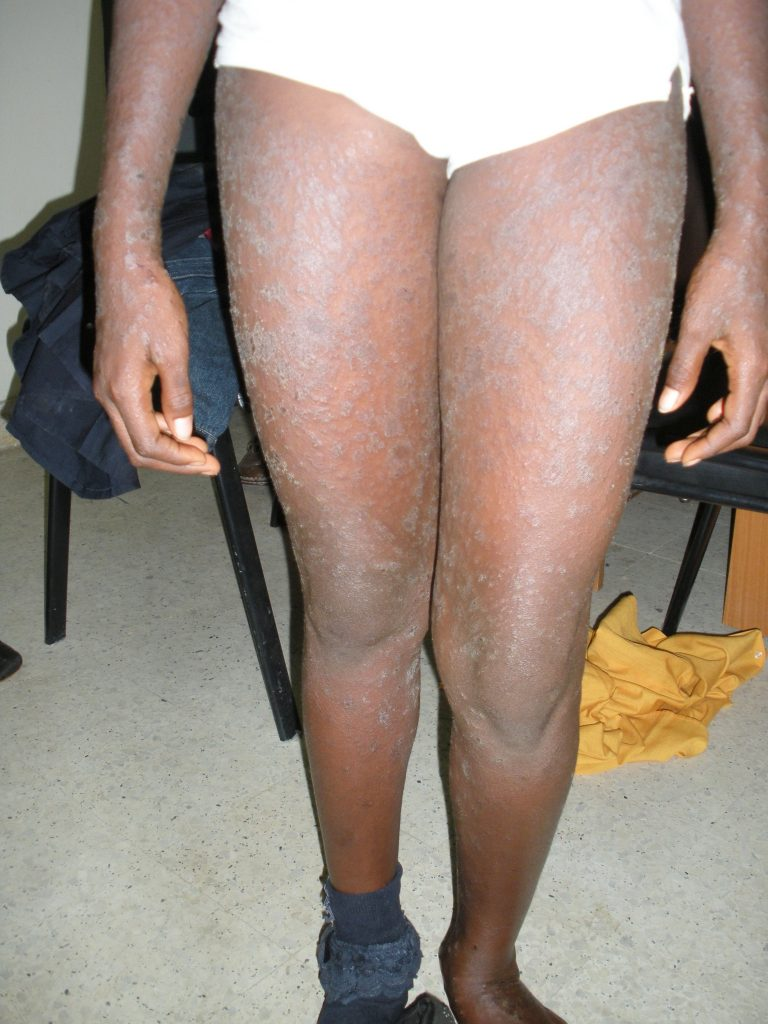 pityriasis rosea arms and legs scales