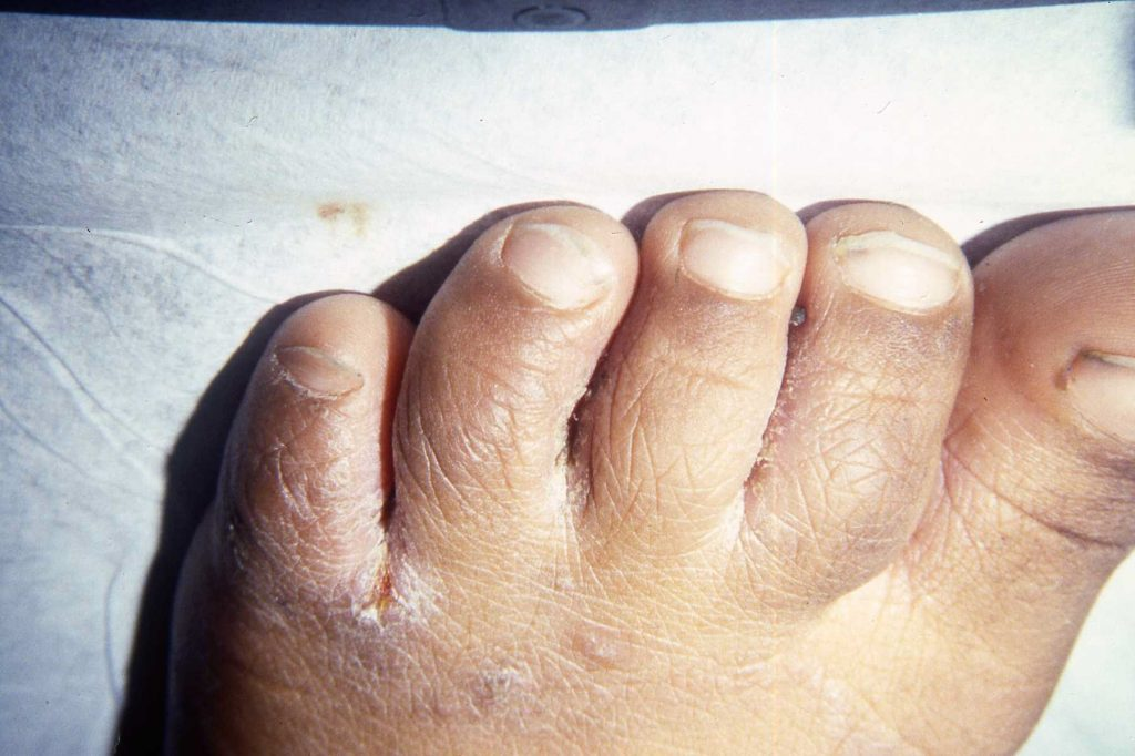 scabies between toes