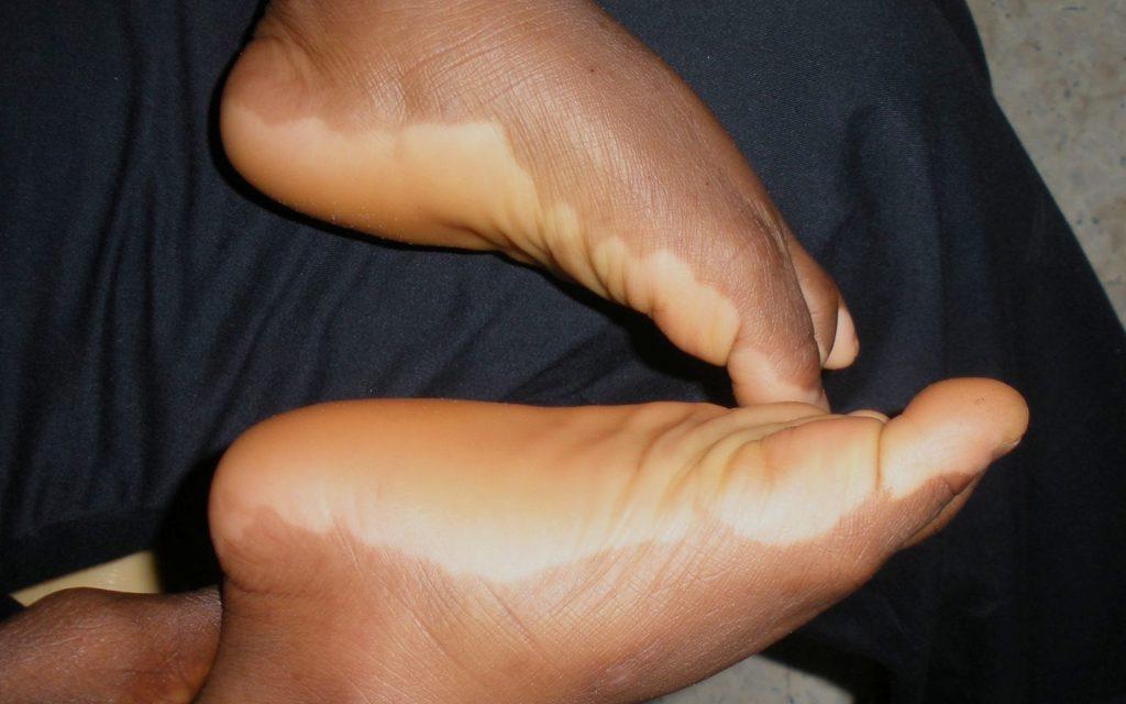 vitiligo feet